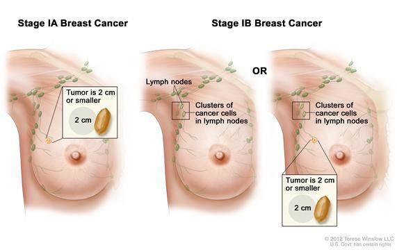 Obat Alami Kanker Payudara